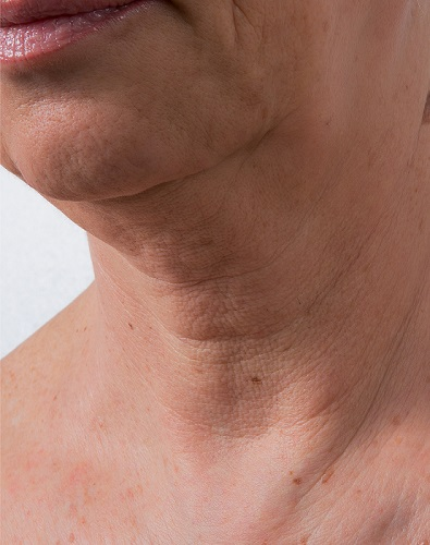Viscoderm Neck - Before